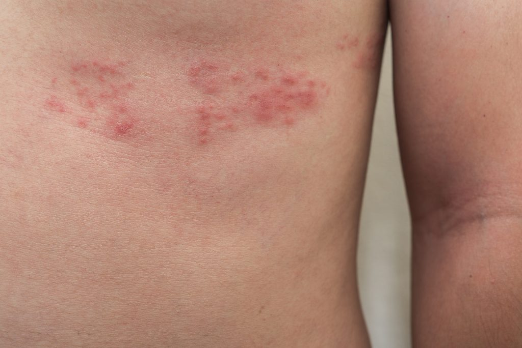 What is Shingles?